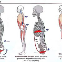 Pregnancy_Back_Pain_Abnormal-Postures